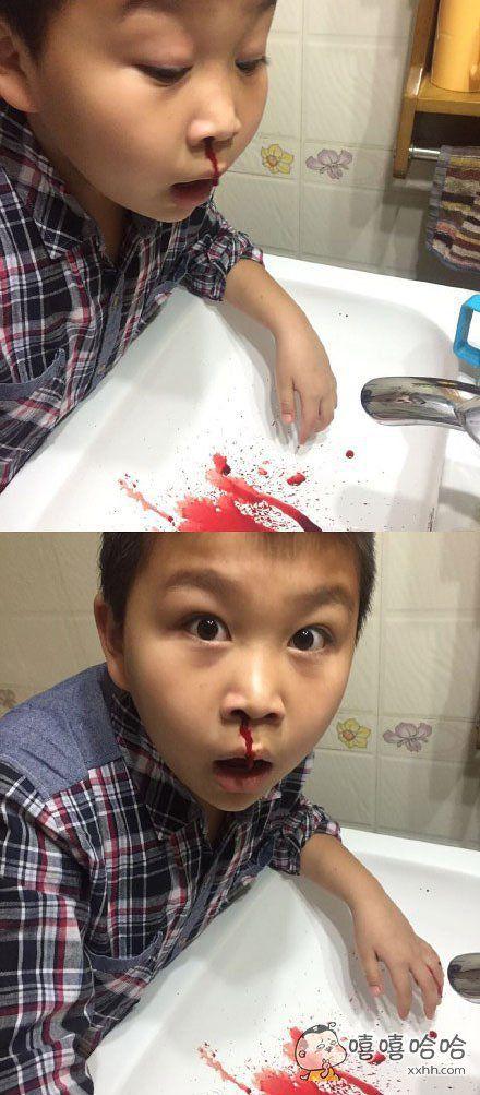 我弟内心戏实在太足了。。。流个鼻血还要这样自拍一下