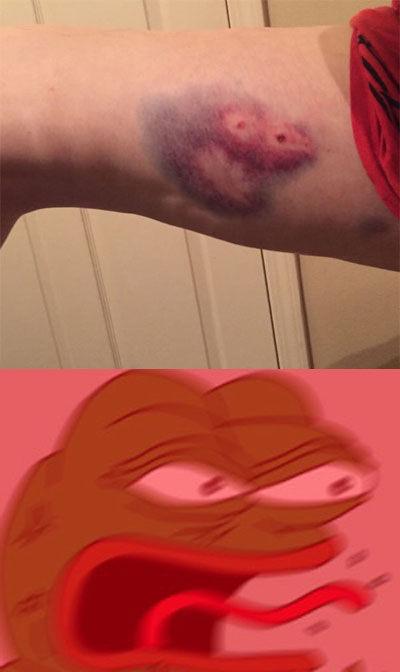 一网友骑自行车摔倒居然摔出了一只悲伤蛙,真是够悲伤的