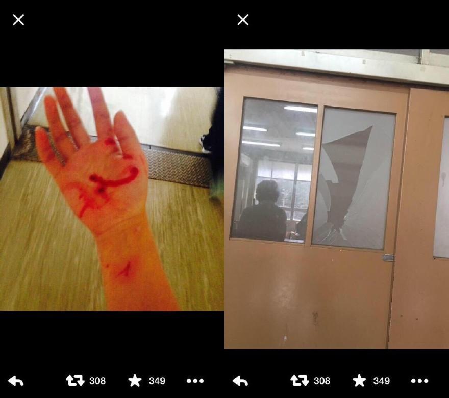 【悲报】一位日本中学生对小伙伴强行壁咚,力度过大,手被划伤