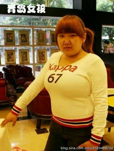 """村里最胖的女人李二嫂想减肥,找到医生,医生看看她说:""""像你这样每顿只吃一个小窝窝头就能瘦了!""""李二嫂问:""""真的吗,那么简单!不知道是饭前吃呢,还是饭后吃呢?"""""""