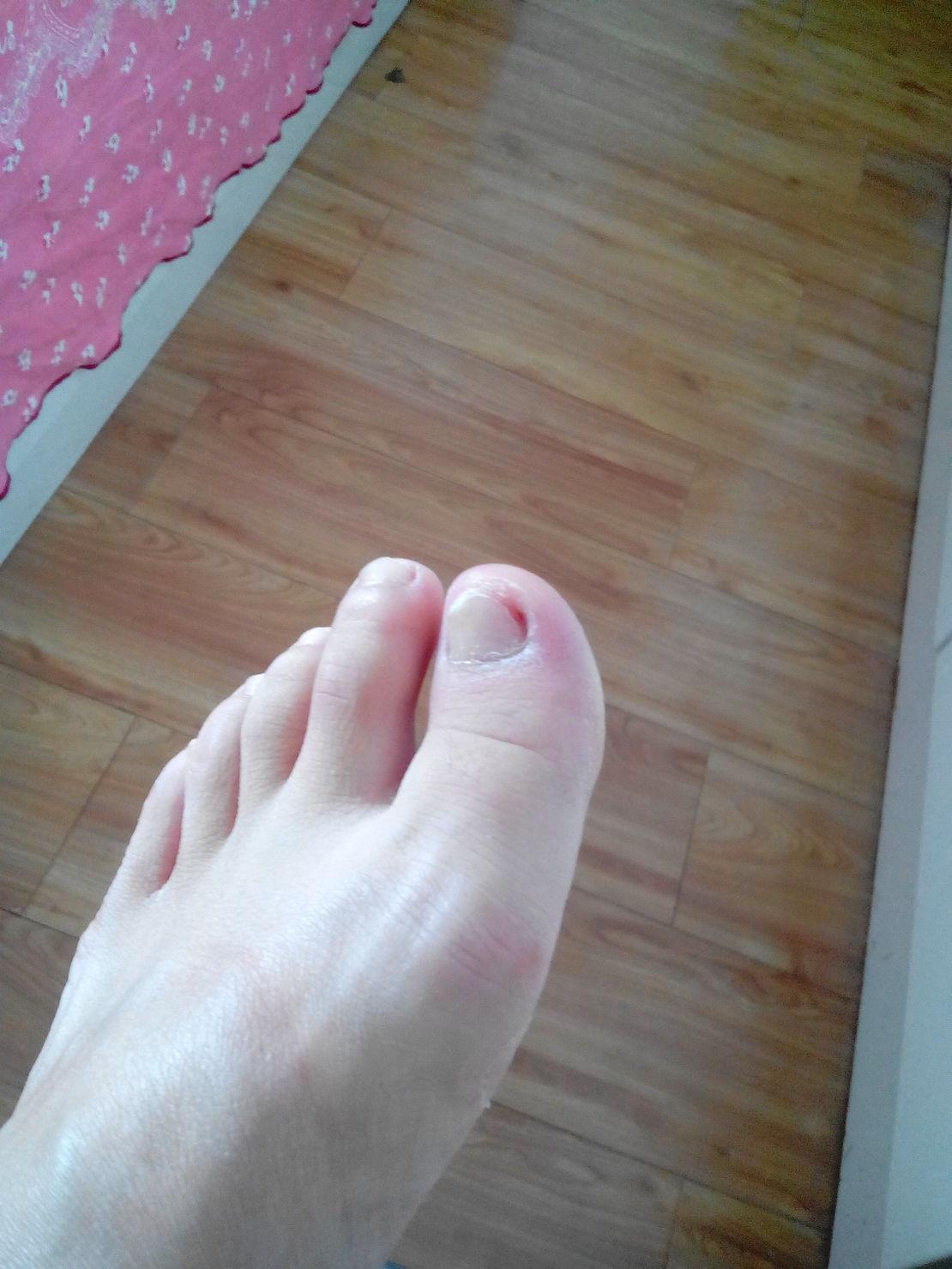 脚指甲长肉里面了肿得像灯泡儿又红又亮