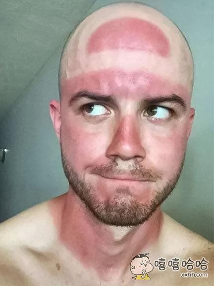 这就是夏天不好好戴帽子的下场