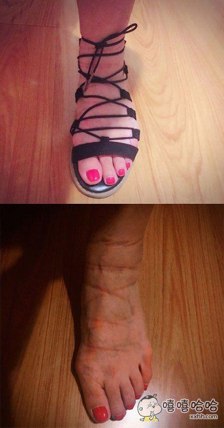 鞋子:怪我咯